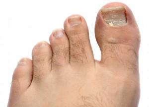 Как выглядит грибок ногтей на ногах