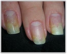 Лечение грибка ногтей на руках