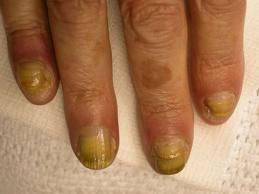 Грибок ногтей на руках - онихомикоз