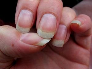 Грибок пальцев ног - фото, способы лечения народными.