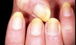 Расслоение ногтей у основания