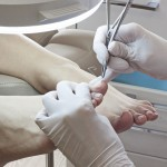 Лечение вросшего ногтя скобами