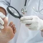 Грибок ногтей: эффективные препараты