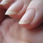 Отслаивание ногтей