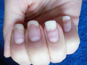 Онихолизис - отслоение ногтей